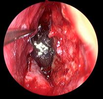 内镜下经蝶鞍区占位病变切除术