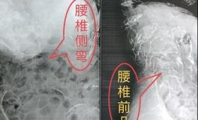 我院麻醉科成功完成1例超高龄严重脊柱畸形患者围术期管理